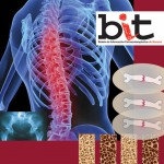 [78] Bisphosphonates:  Do they prevent or cause bone fractures?