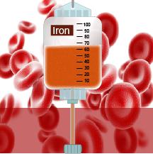 97] Hierro intravenoso (IV) para la deficiencia grave de hierro