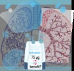 [102] Indacaterol para la enfermedad pulmonar obstructiva crónica (EPOC)